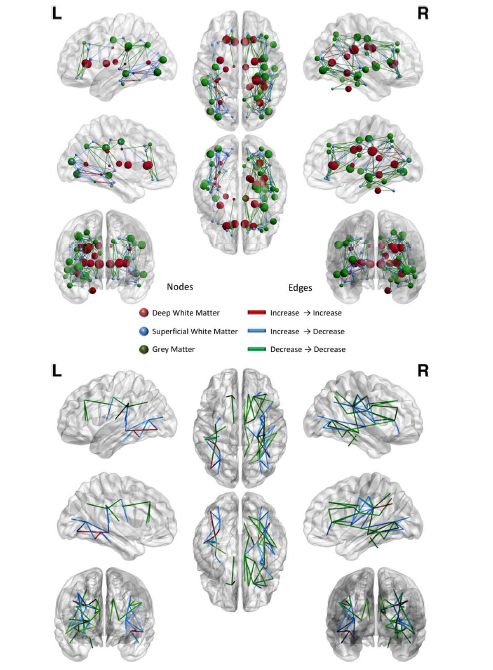 Concordance of white matter and gray matter abnormalities in autism spectrum